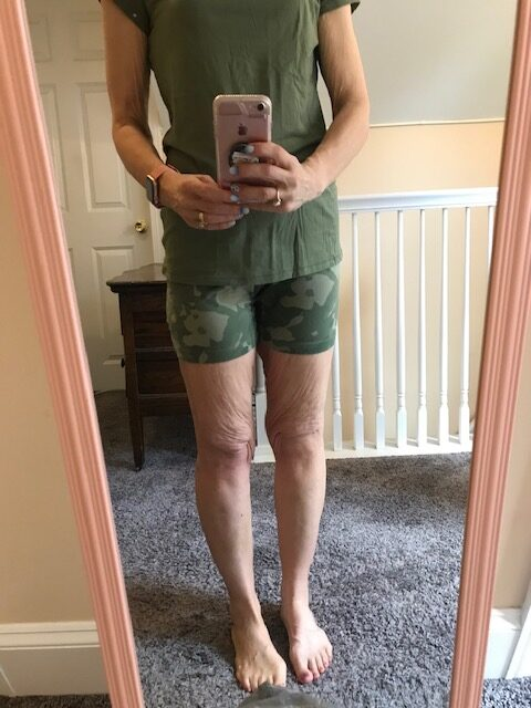 Loose skin on legs after 100 pounds lost